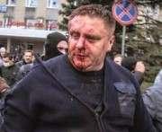 Главного полицейского Харькова переводят в Киев