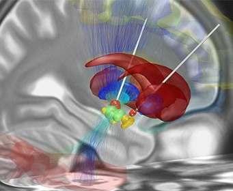 Названы опасные последствия глубокой стимуляции мозга