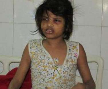 В Индии нашли девочку, жившую в джунглях с обезьянами: видео