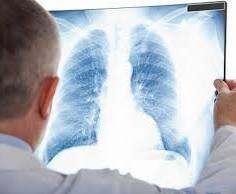 В Харькове растет заболеваемость туберкулезом