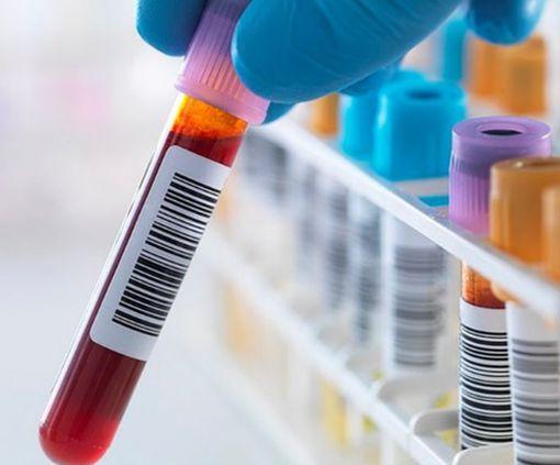 Ученые разработали революционный метод диагностики рака