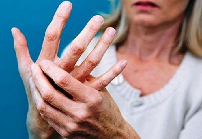 В Словении могут осудить на 8 лет женщину, которая лишилась руки